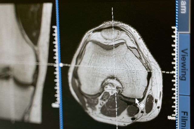 Everything You Wanted to Know About Robotic Knee Surgery...but were afraid to ask