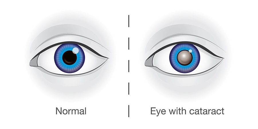 One of the most common causes of low vision is cataracts. Cataracts describe the appearance of a cloudy area in the lens of the eye. This cloudiness can make it difficult to see and can potentially develop in both eyes. The severity of the cataract formation can be ascertained by an Optometrist using a visual acuity test to evaluate the function and investigate the extent of the damage.