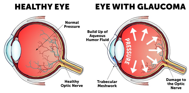 glaucoma, which refers to a group of eye-related diseases that can affect the optic nerve which is essential for sight as it helps to convey visual information and refractive errors which describes a problem with an individual's physiological ability to accurately focus light on the retina due to the shape of the eye.