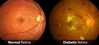 Other visual problems which can result in affected vision in seniors include diabetic retinopathy which is a disorder where damage to the Retina occurs as a result of Diabetes Mellitus, age-related macular degeneration which can also be known as macular degeneration and is a disorder that can cause blurred or no vision in the centre of the visual field. Corneal clouding is another factor that can cause low vision due to a loss of the transparency of the cornea which is responsible for focusing light.